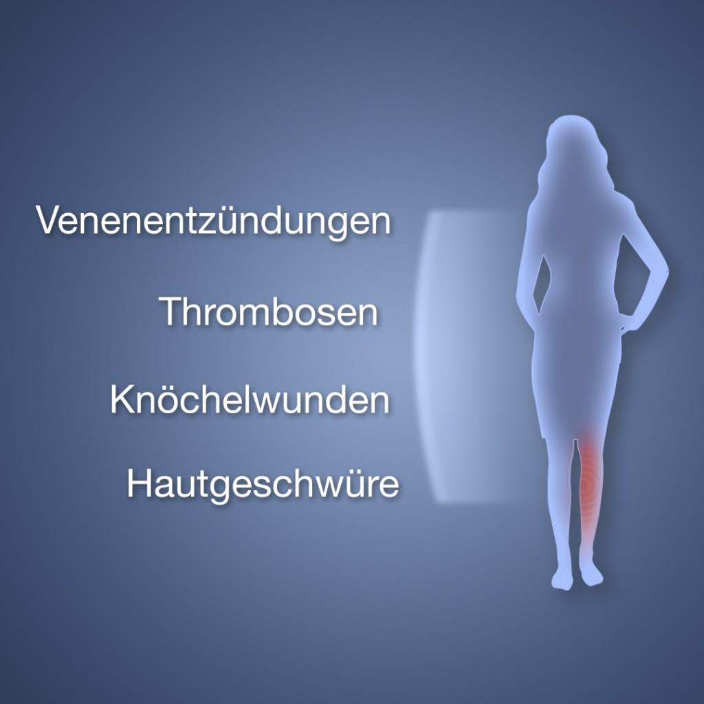 Animationsfilm fürOlympus Surgical Technologies Europe. Promotionfilm für Patienten zur Behandlung von Krampfadernmit demPrecision System